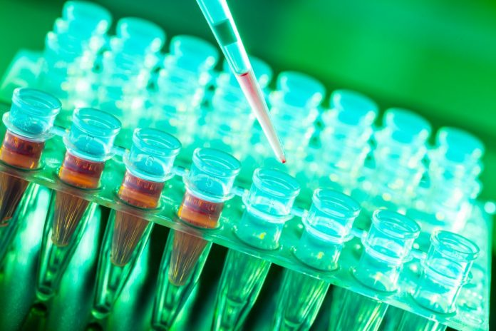 The growing need for innovation in biobanking