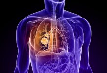 Lung cancer death rates may overtake breast cancer
