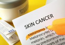Skin cancer prevention in Europe