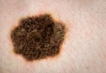 Raising awareness of skin cancer