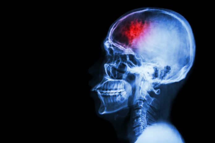 Stroke neuroplasticity X-ray illustration
