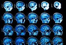 heat shock proteins mri neurodegenerative disease