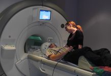 living with epilepsy mri scan