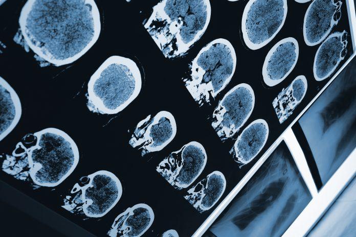 improvements in stroke care