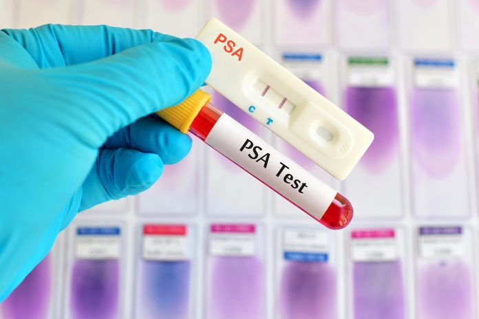 treatments for prostate cancer psa test