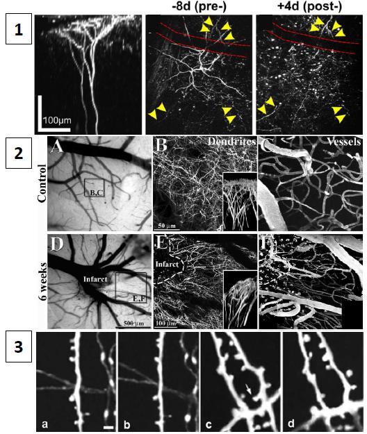 synaptogenesis circuit plasticity