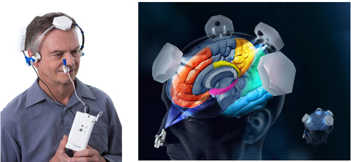 Figure 2: Vielight Neuro transcranial and Vielight Intranasal LED devices