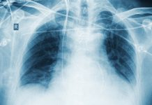 lung cancer drug