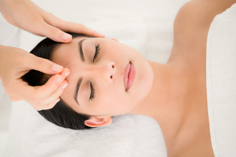 How can acupuncture help in the treatment of migraines