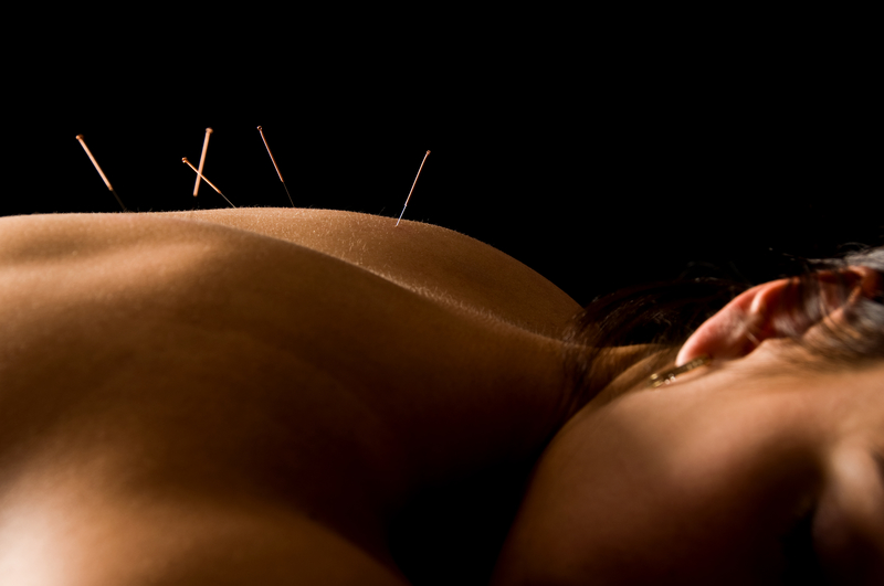 UK clinicians urged to prescribe acupuncture to help ease NHS pressures