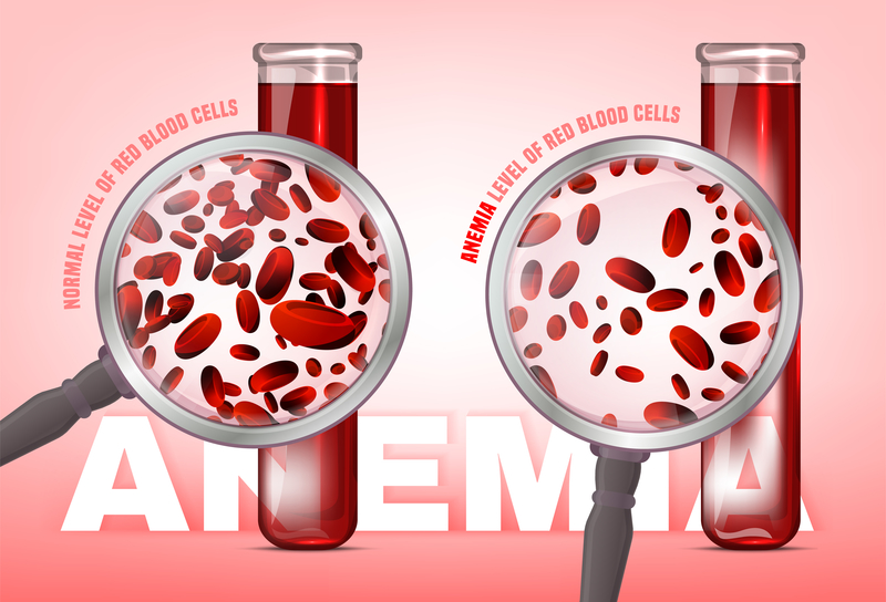 Anaemia: Challenges and concerns on iron deficiency