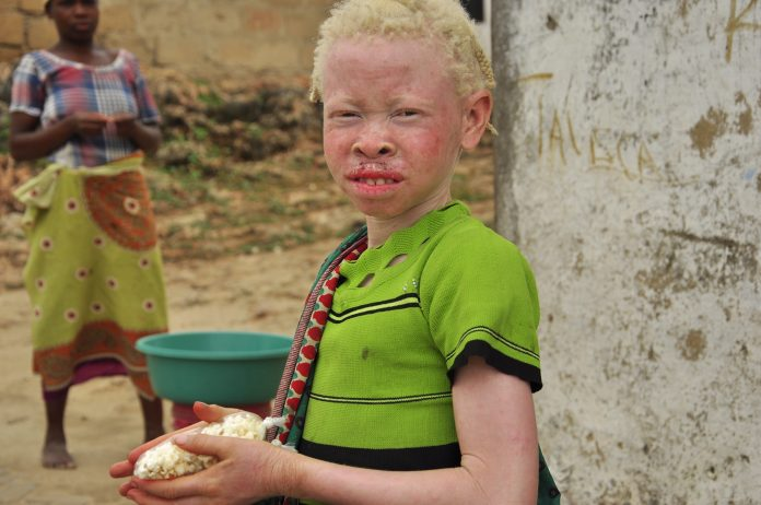albinos in malawi, malawi's elections