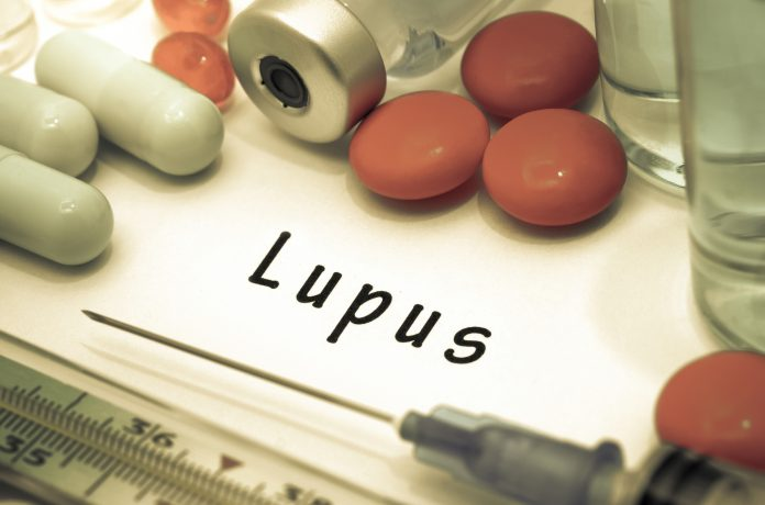 systemic lupus erythematosus