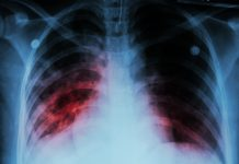 incurable lung disease,idiopathic pulmonary fibrosis