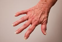 Psoriasis and Rheumatoid Arthritis, cannabinoids