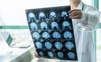 Neurodegenerative disease research