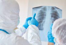 pneumonia in COVID-19 patients