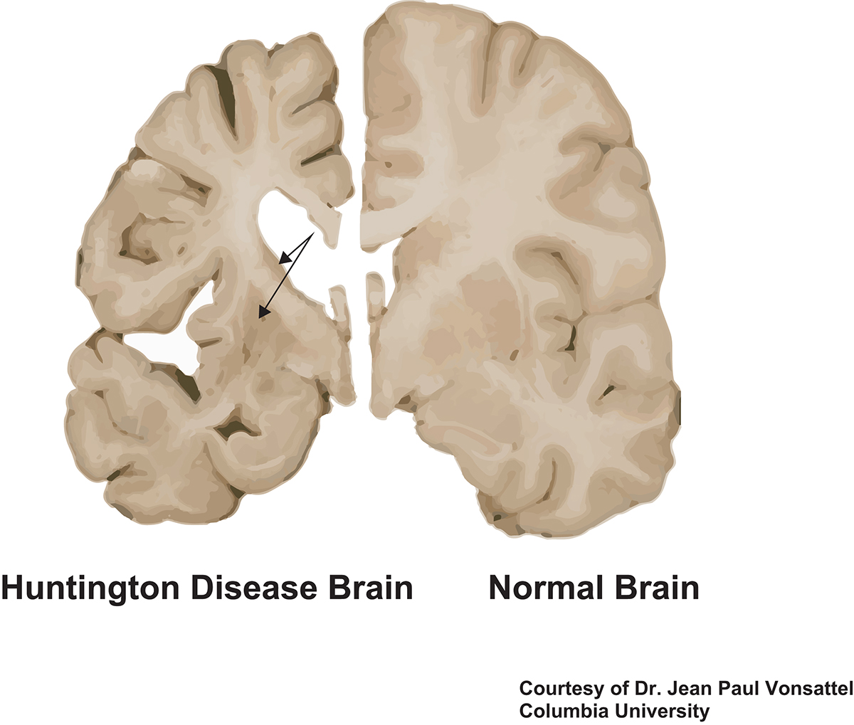 huntington's disease research, cell biology
