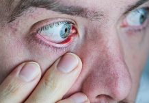 artificial tear substitutes, dry eye