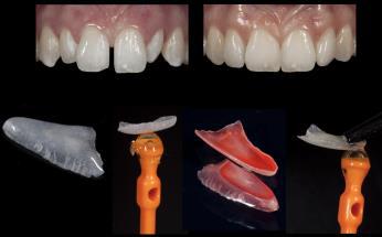reconstructive dentistry