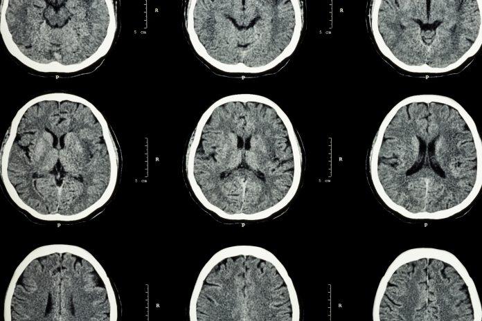 executive dysfunction and ptsd, brain