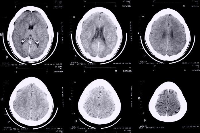 treatment for epilepsy, neuron