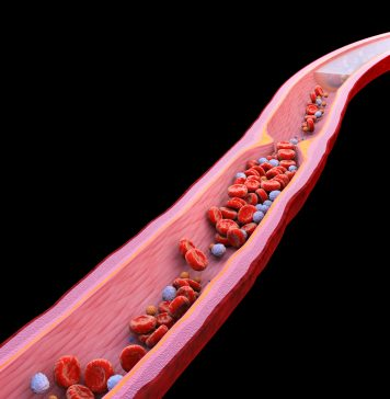 endothelium and long COVID, long COVID