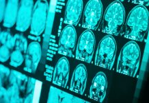 research into epilepsy, child