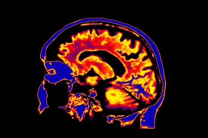 brainscan in colour