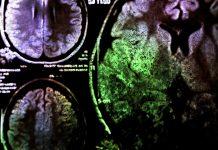 brain tumour diagnosis